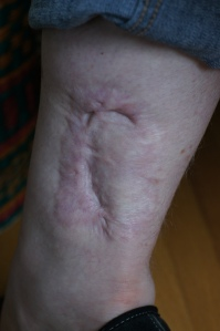 my RIGHT ankle - 5 years after